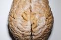 為了研究,需要更多大腦