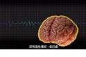每日酷知識:人腦為什麼皺皺的?