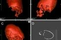 DNA能否解開古代歐洲的細長頭骨之謎?