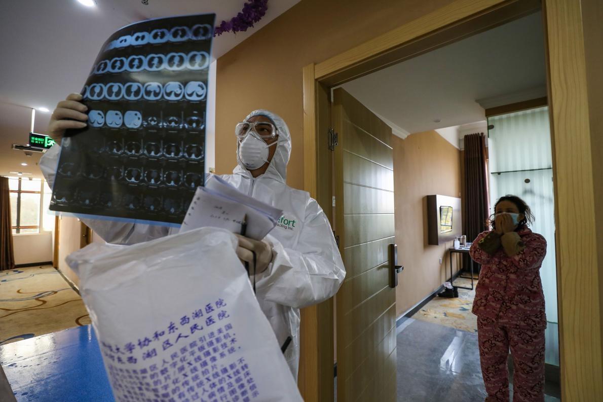 這張攝於2020年2月3日的照片顯示,一名醫生正在檢查一張肺部的電腦斷層掃描影像,當時他在武漢隔離區的一間病房巡視。武漢位於中國湖北省中部,是新型冠狀病毒疫情的發源地。截至2月20日為止,全球總感染人數已超過7萬5000人。PHOTOGRAPH BY STR/AFP VIA GETTY IMAGES