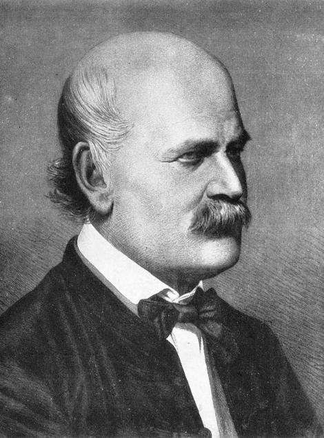 匈牙利醫生伊茲納.塞默維斯是最早提出消毒做法的先驅,他主張洗手可以改善醫療品質,卻被斥為荒誕不經。PHOTOGRAPH BY GL ARCHIVE, ALAMY