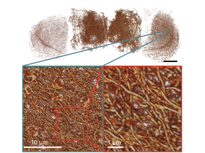 果蠅全腦多巴胺神經多尺度圖像(上),細部的神經結構(左下),以及放大展現出非常複雜、但可經由新顯微術辨識的神經網路(右下)。 圖片來源│陳壁彰