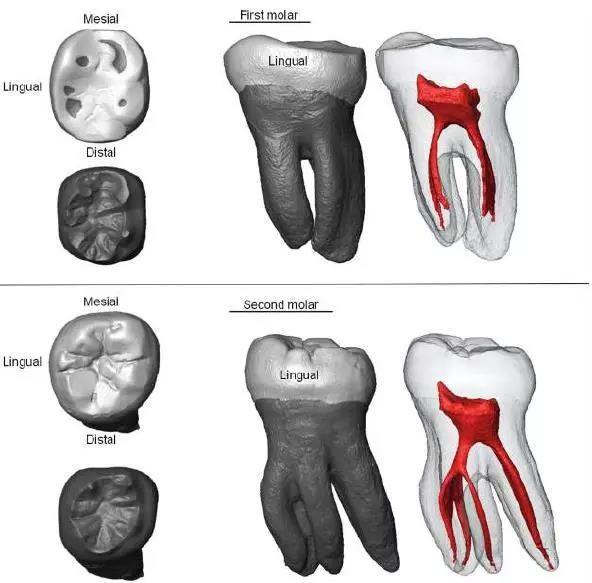 CT掃描獲得的牙齒內部形態,紅色部分是牙髓腔。圖片來源:參考文獻[1]