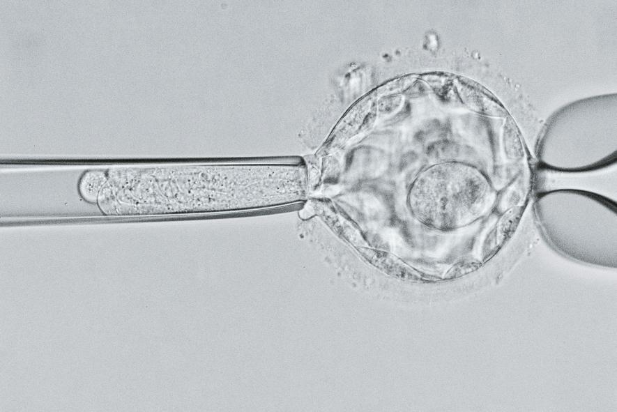 在這幅顯微影像中,科學家仔細審視一個五天大的胚囊(blastocyst),尋找囊狀纖維化(cystic fibrosis)的基因。研究人員會運用各種技巧處理疾病的遺傳根源,包括基因編輯在內。但正如最近的研究成果顯示,對人類基因體進行可遺傳的改變,可能會帶來無法預期的風險。PHOTOGRAPH BY DAVID LIITTSHWAGER, NAT GEO IMAGE COLLECTION