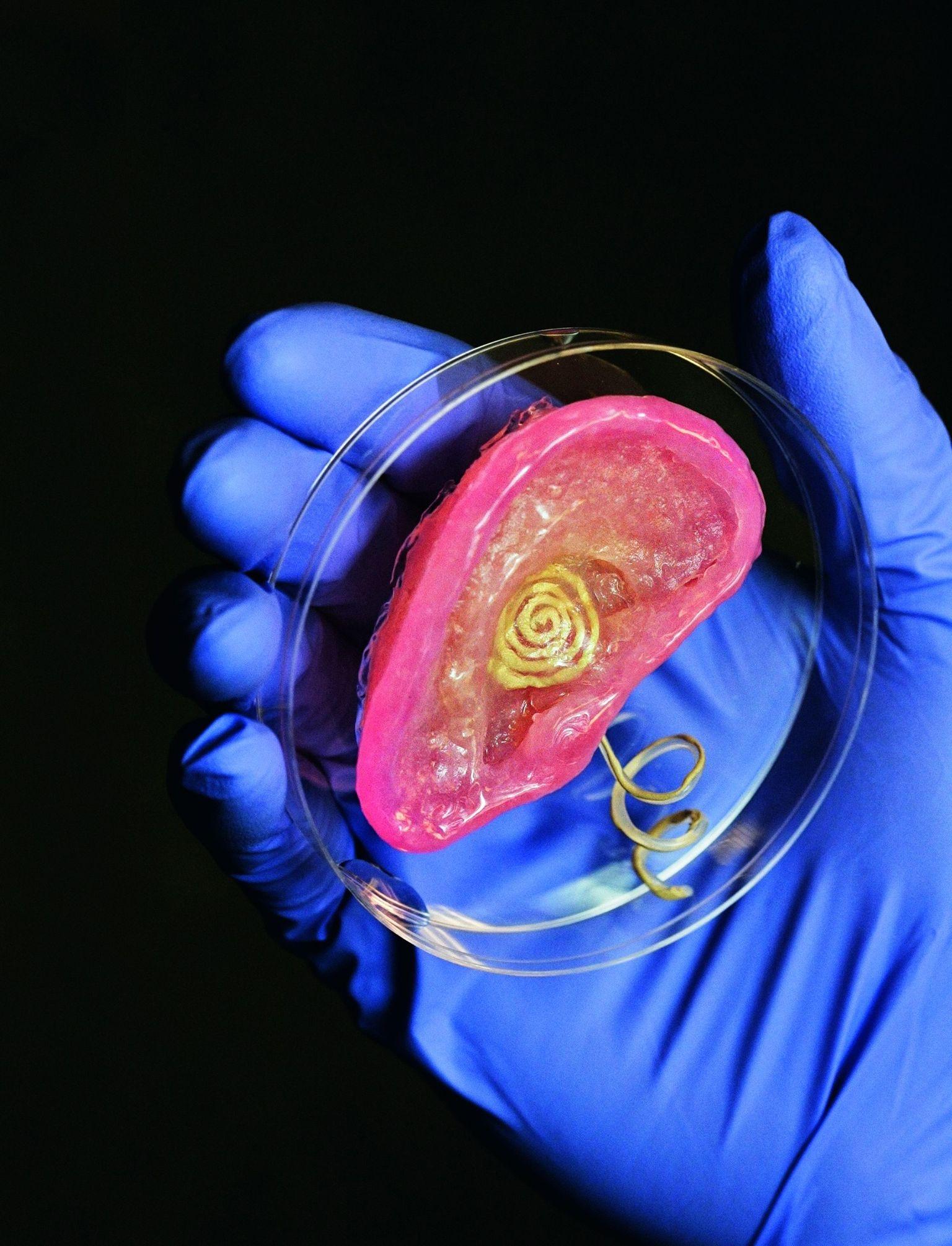 這是普林斯頓大學的研究人員以聚矽氧和軟骨細胞為「墨水」印出的仿生耳。金屬線圈負責收發可以刺激聽神經的電脈衝,就和人工電子耳一樣。PHOTO: FRANK WOJCIECHOWSKI SOURCE: MICHAEL MCALPINE, PRINCETON UNIVERSITY