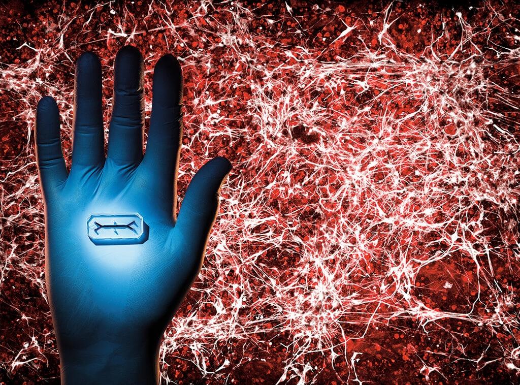 病人的迷你器官 洛杉磯錫安山再生醫學中心的研究人員克萊夫.史文森和山謬.桑西斯,在照片中的晶片上(照片呈現為實際大小)造出肌肉萎縮性脊髓側索硬化症(又稱漸凍人症)患者的迷你脊髓組織。運動神經元(白色)和血管(紅色)由患者幹細胞衍生而來,並形成放大圖上的功能性組織。透過顯微鏡,科學家得以即時觀察神經元如何發送信號,或是拍照後加以分析。科學家的目標,是創造出能預測不同藥物在特定病人身上效用的晶片。 | PHOTO: 克雷格.卡特勒 CRAIG CUTLER