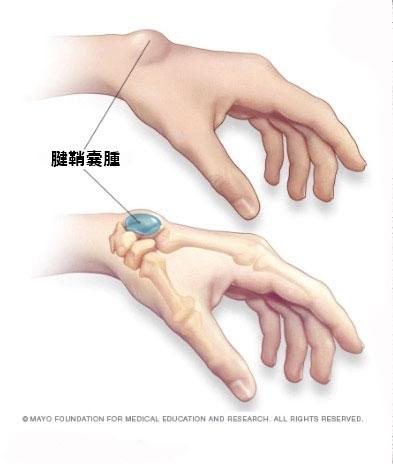腱鞘囊腫。圖片來源:文獻【3】