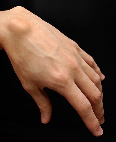 腱鞘囊腫。圖片來源:Wikimedia Commons