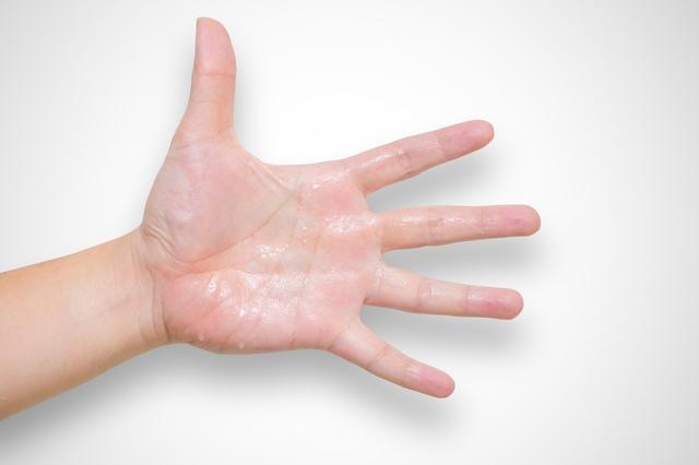 可惡的手汗到底是怎麼回事?