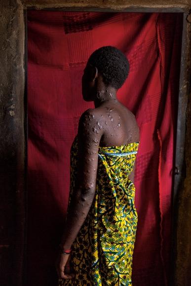 影像藝廊:戰爭撕裂的奈及利亞