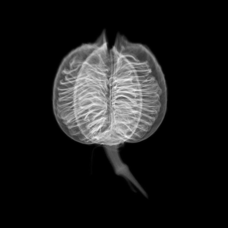 杜荷提製作這張紅絲蘭果實的X光影像,是因為果實的內部結構讓她聯想到種子銀行的建築物。PHOTOGRAPH BY DORNITH DOHERTY
