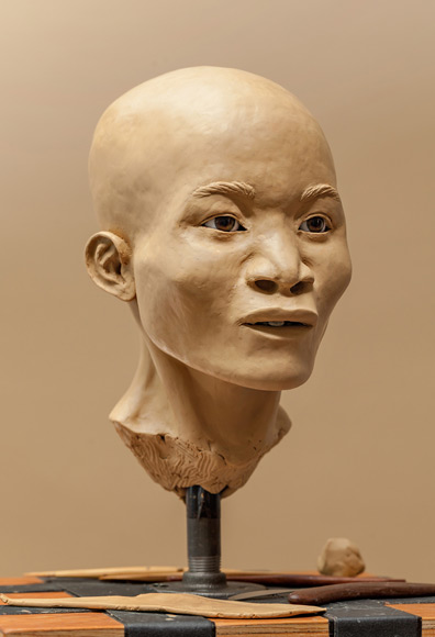 02-naia-facial-reconstruction-580v