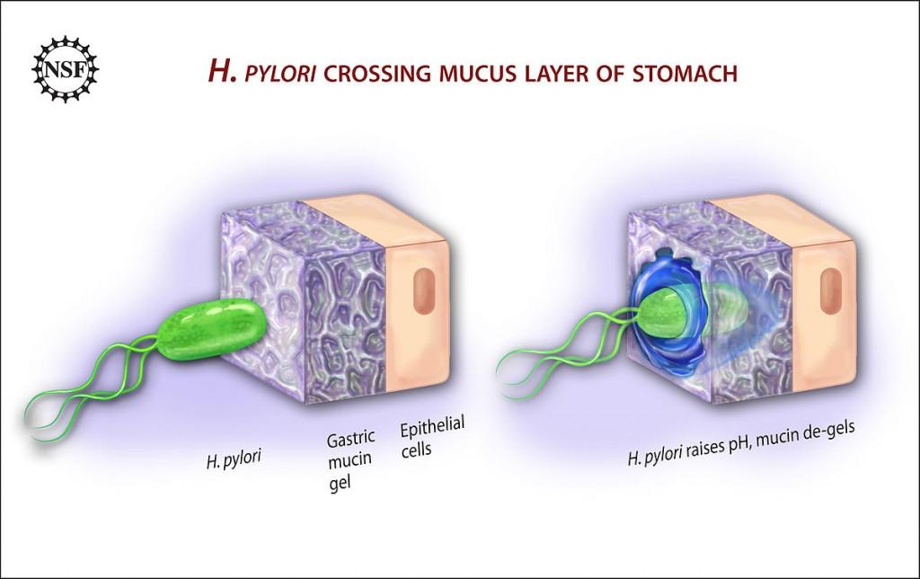 以胃為家的胃幽門螺旋桿菌