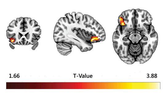 大腦對盜版反應 (1)