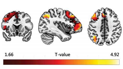 大腦對盜版反應 (2)